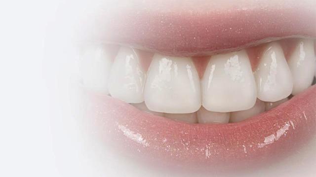 Genomskinlig tandställning