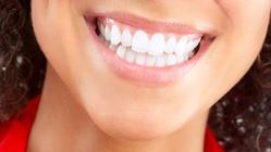 bleka tänderna gävle