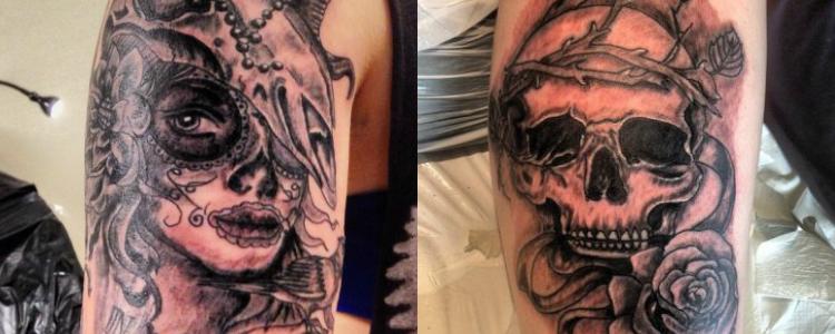 borttagning av tatuering gävle